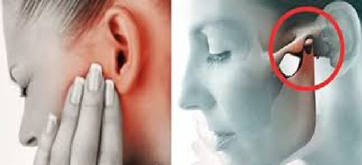 TMJ Dysfunction and Orofacial Pain
