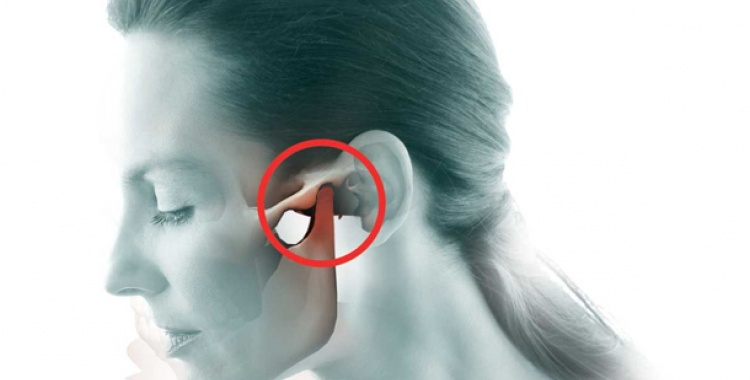 TMJ Dysfunction and Orofacial Pain